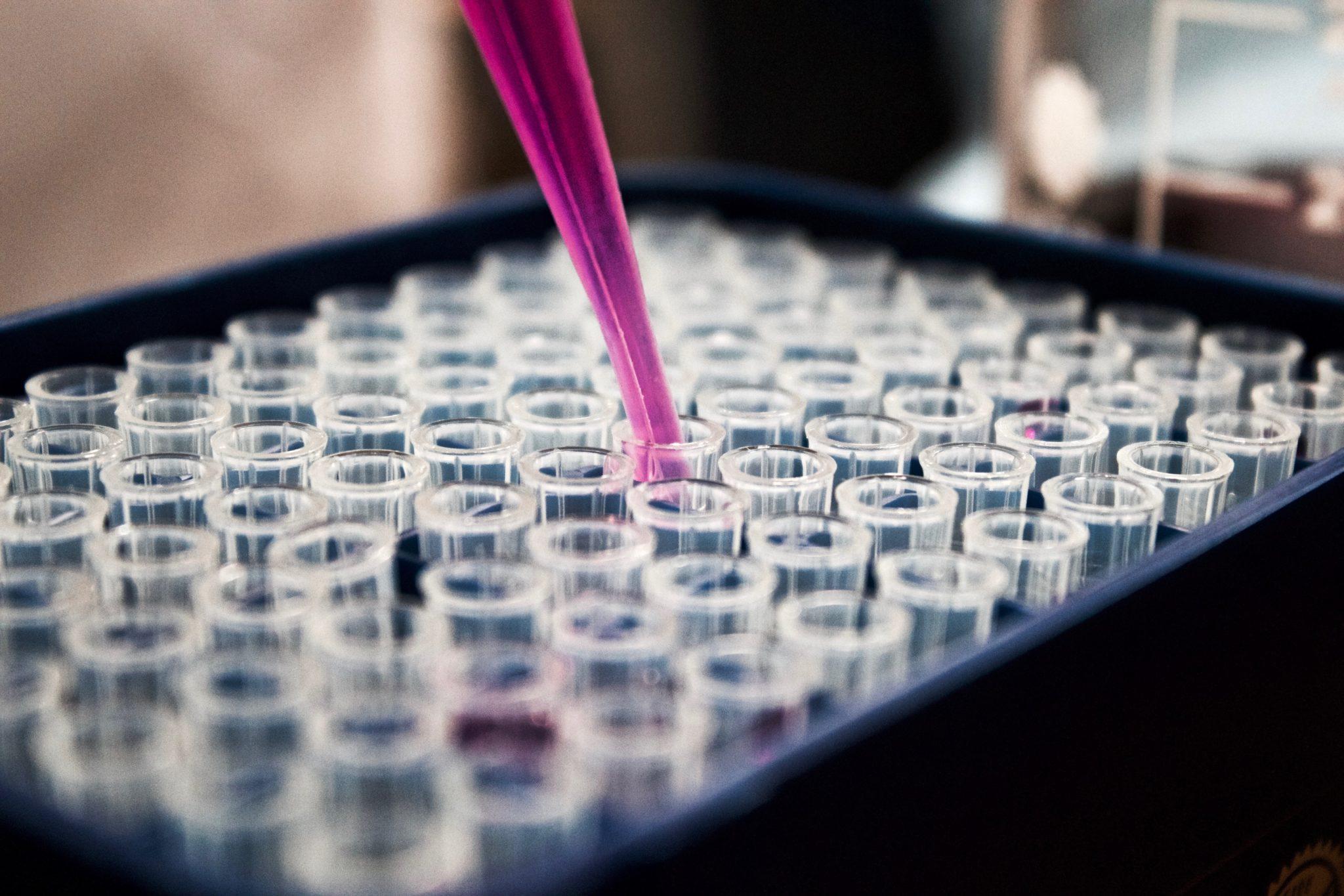Coronavirus-Krise wird massiv unterschätzt